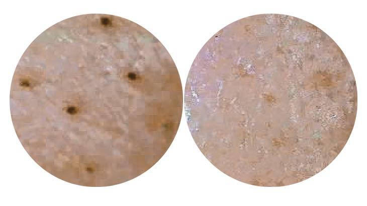 キョンセームの使用前と使用後の比較画像